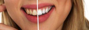 Principais dúvidas sobre clareamento dental