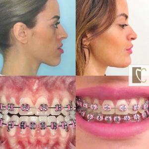 Exemplos de Cirurgias Ortognáticas realizadas pelo Prof. Dr. Francisco Pacca e equipe