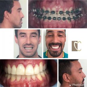Cirurgia Bucomaxilo