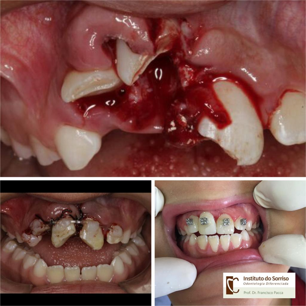 Trauma de Face | Trauma Dental